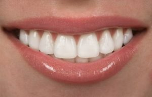 Smile after dental bonding treatment in Auburn, NY