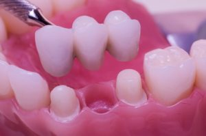 Image of dental bridges in Auburn, NY