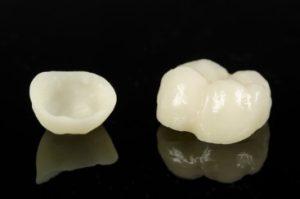 Dental Crown Treatment Syracuse