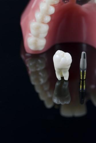 Syracuse Implant Dentistry